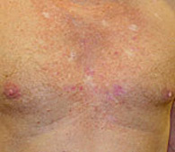 precancerous AK's before treatment - San Diego Dermatology and Laser Surgery