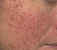 Rosacea before treatment - San Diego Dermatology and Laser Surgery