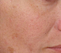 Rosacea  after treatment - San Diego Dermatology and Laser Surgery