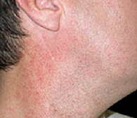 Redness on neck  before treatment - San Diego Dermatology and Laser Surgery